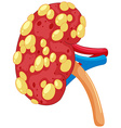 Close up kidney with disease vector image