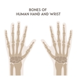 Bones of human hand and wrist vector image