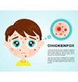 little boy kid face sick chickenpox vector image