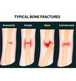 Bone fractures vector image