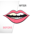 Cleaning Teeth Before and After vector image