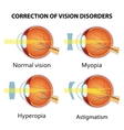Correction of various eye vision disorder vector image vector image