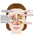 sinusitis vector image
