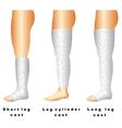 Leg casts vector image
