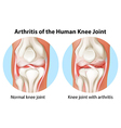 Arthritis of the human knee joint vector image