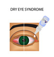 conjunctivitis redness eye vessels eye drops vector image
