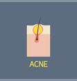 acne icon vector image