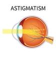 Astigmatism Eyesight problem blurred vision vector image
