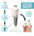 Dental Implant Structure Medical Infographic vector image