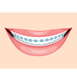 Beautiful Smile With Teeth Braces vector image