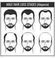 Hair loss stages and types of baldness man hairs vector image