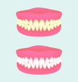 denture in two health states dental implant with vector image