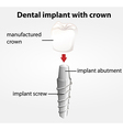 Dental implant with crown vector image