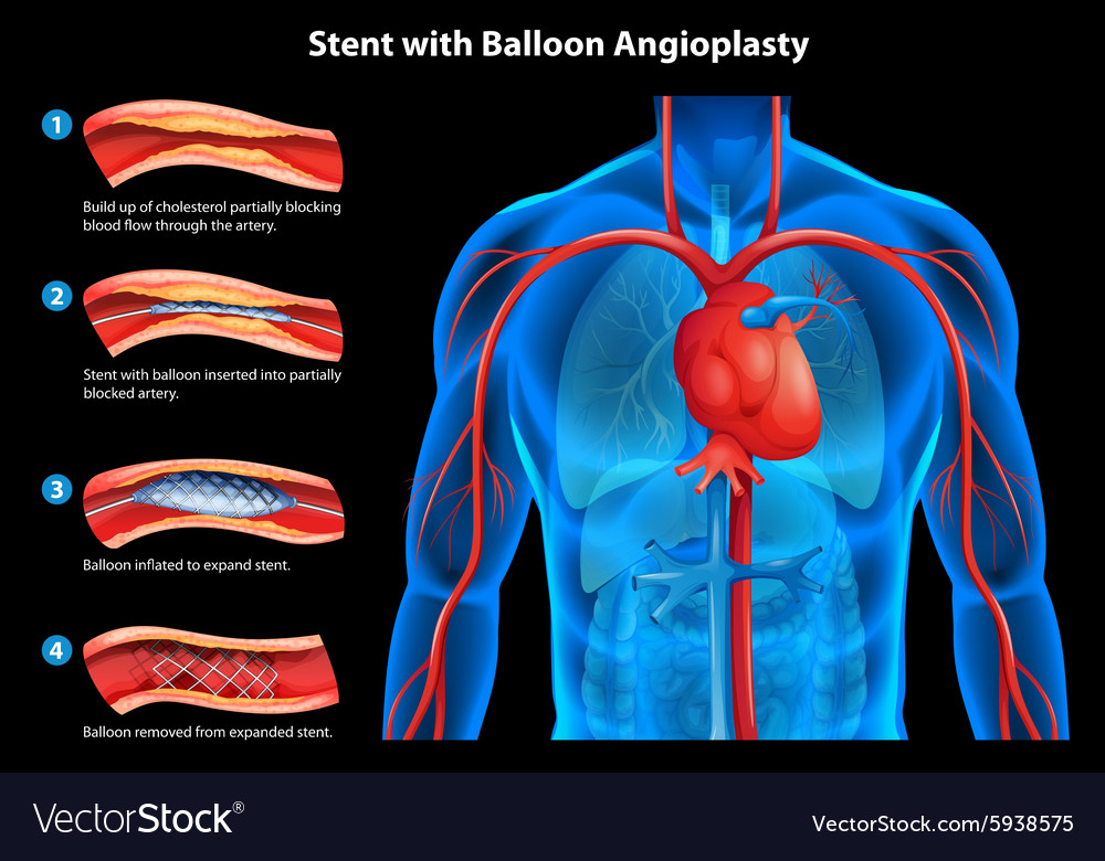 Stent with balloon angioplasty vector