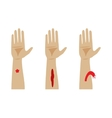 Types of bleeding vector image