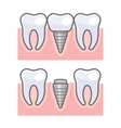 Dental Implant and Tooth Set vector image