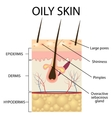 The layers of oily skin vector image vector image