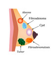 Fibroadenoma tumor cyst world breast cancer day vector image