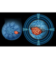Position of breast cancer vector image