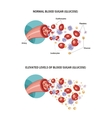 Artery and diabetes vector image