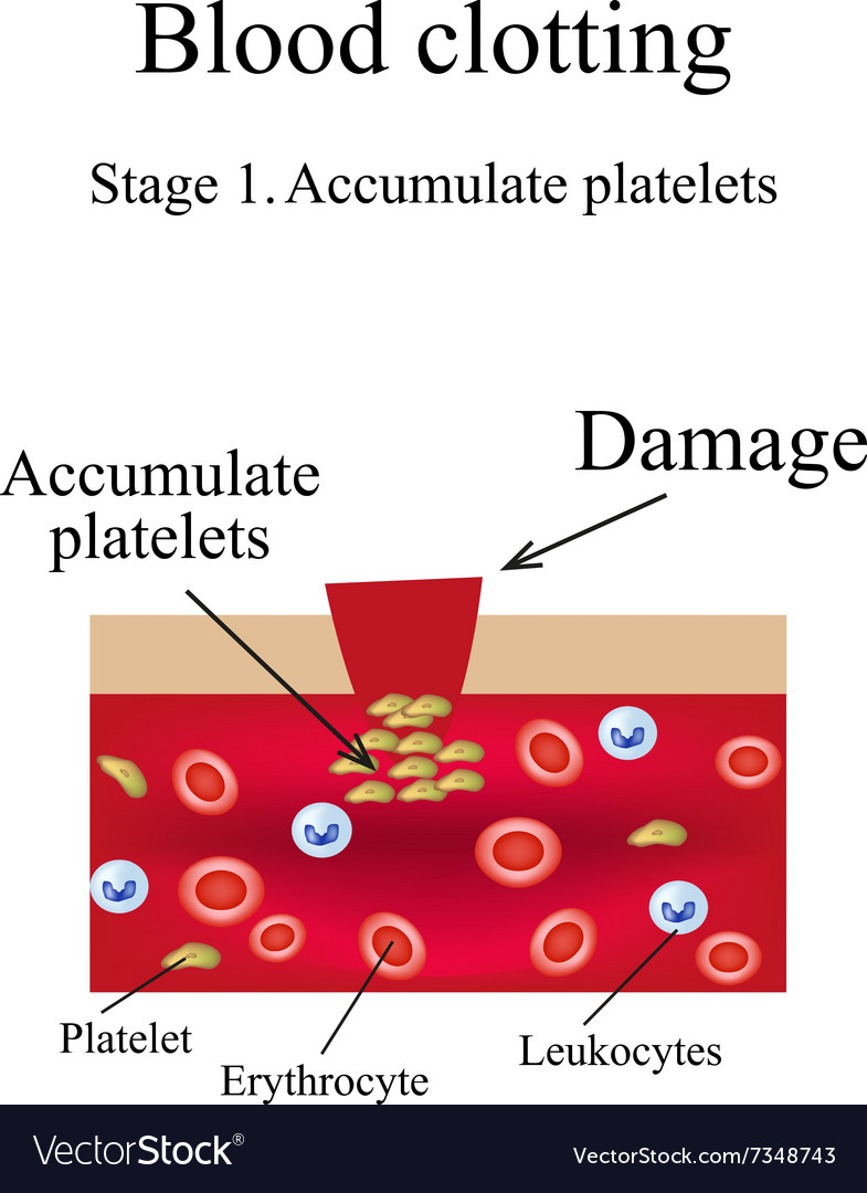 Blood clotting stage 1 infographics vector