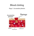 Blood clotting Stage 1 Infographics vector image