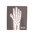 x ray image of human hand cartoon vector image