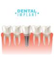 Dental Implant Model Side View Poster vector image