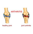 joint arthritis vector image