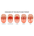 diseases of the throat vector image