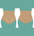 fat and slim girls bellies before and after vector image