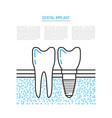 dental implant vector image