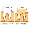 human gum bleeding periodontal disease oral care vector image