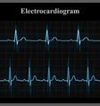 normal and tachycardial ecg charts vector image