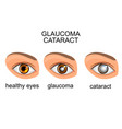 healthy eyes glaucoma cataracts vector image