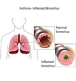 bronchial tubes of healthy person and a person suf vector image