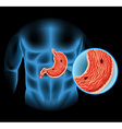 Stomach Ulcer diagram in human vector image