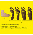 different degrees of flattening of the foot medici vector image