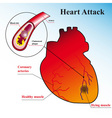 schematic explanation of the process of heart atta vector image vector image