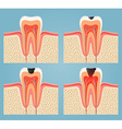 stages of tooth decay vector image