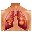 Lung cancer in human vector image