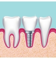 Human teeth and dental implant in jaw orthodontist vector image