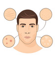 man portrait with facial treatments face skin vector image