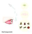 Eye with Viral Conjunctivitis or Pink Eye vector image