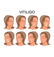 vitiligo treatment before and after vector image