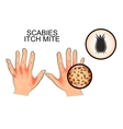 Infection of scabies itch mite vector image