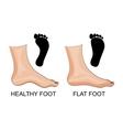 Feet healthy and flat feet footprint vector image