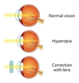 Hyperopia corrected by a plus lens vector image vector image